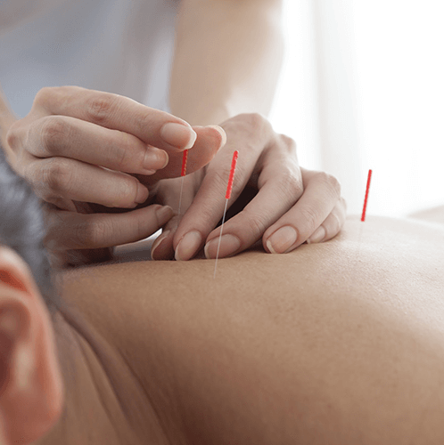 tcm acupuncture