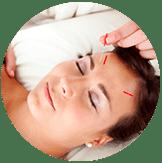 Acupuncture Promo